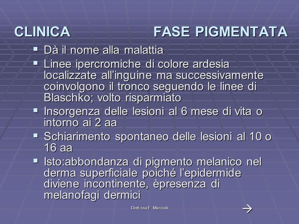 Dott.ssa E. Muccioli CLINICA FASE PIGMENTATA Dà il nome alla malattia Dà il nome alla malattia Linee ipercromiche di colore ardesia localizzate alling