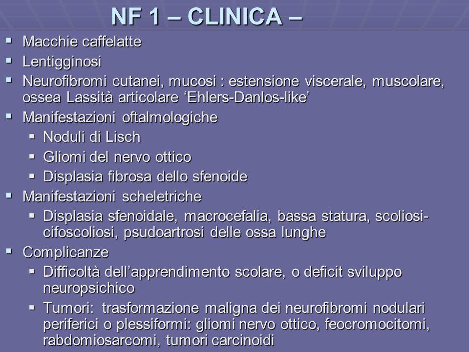 Dott.ssa E. Muccioli NF 1 – CLINICA – Macchie caffelatte Macchie caffelatte Lentigginosi Lentigginosi Neurofibromi cutanei, mucosi : estensione viscer