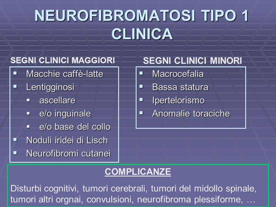Dott.ssa E. Muccioli NEUROFIBROMATOSI TIPO 1 CLINICA Macchie caffè-latte Macchie caffè-latte Lentigginosi Lentigginosi ascellare ascellare e/o inguina