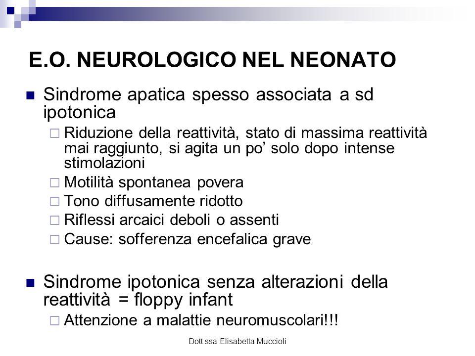 Dott.ssa Elisabetta Muccioli E.O. NEUROLOGICO NEL NEONATO Sindrome apatica spesso associata a sd ipotonica Riduzione della reattività, stato di massim