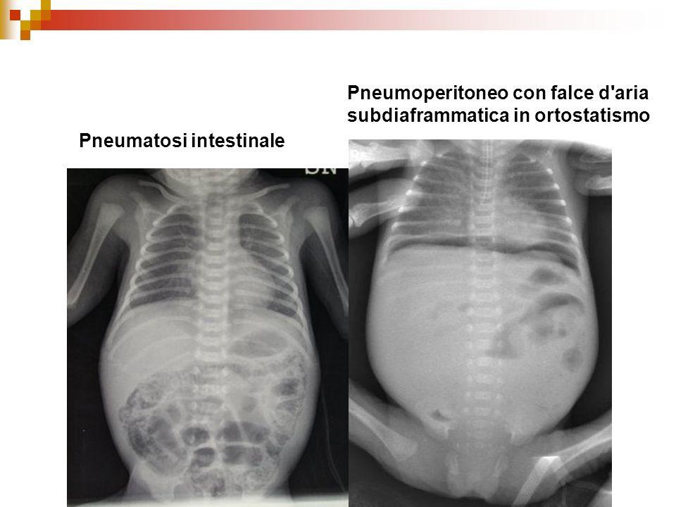 Dott.ssa E. Muccioli Pneumatosi intestinale Pneumoperitoneo con falce d'aria subdiaframmatica in ortostatismo