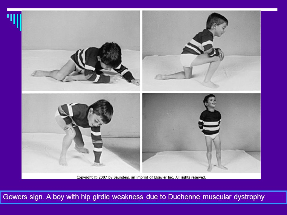 Dott.ssa Elisabetta Muccioli Gowers sign. A boy with hip girdle weakness due to Duchenne muscular dystrophy