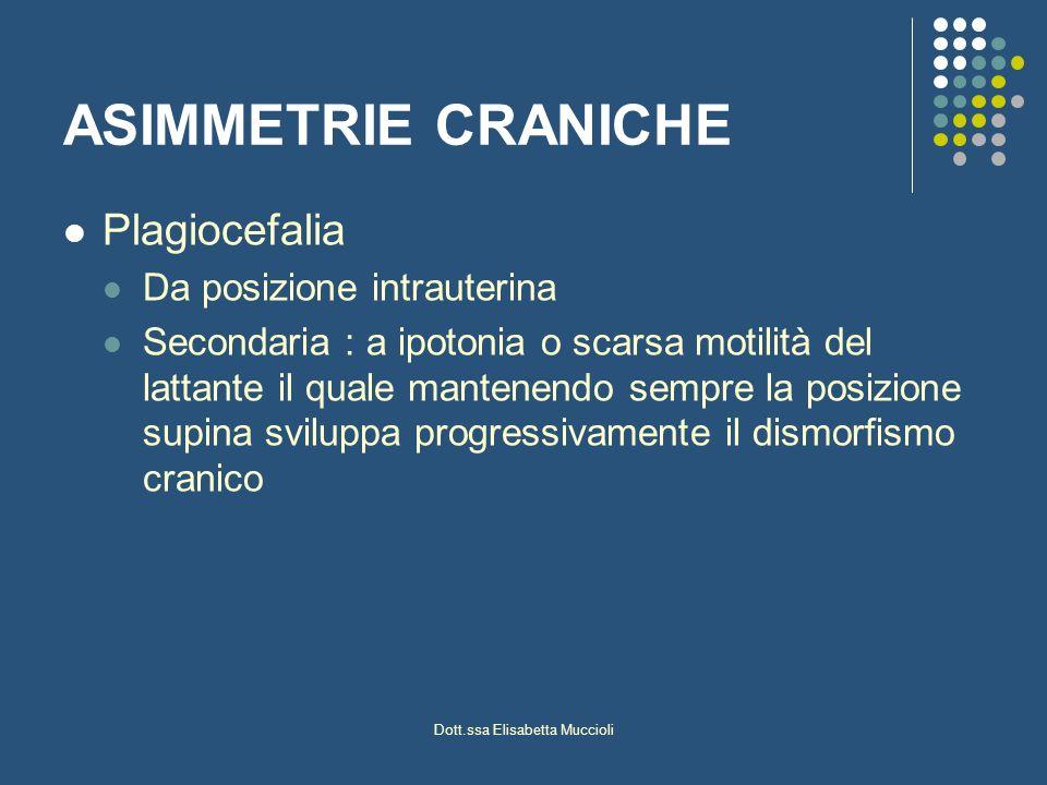 Dott.ssa Elisabetta Muccioli ASIMMETRIE CRANICHE Plagiocefalia Da posizione intrauterina Secondaria : a ipotonia o scarsa motilità del lattante il qua