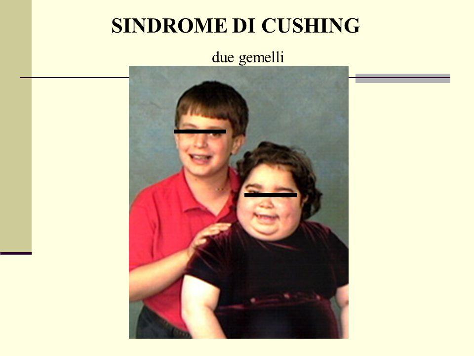 Dott.ssa Elisabetta Muccioli SINDROME DI CUSHING due gemelli