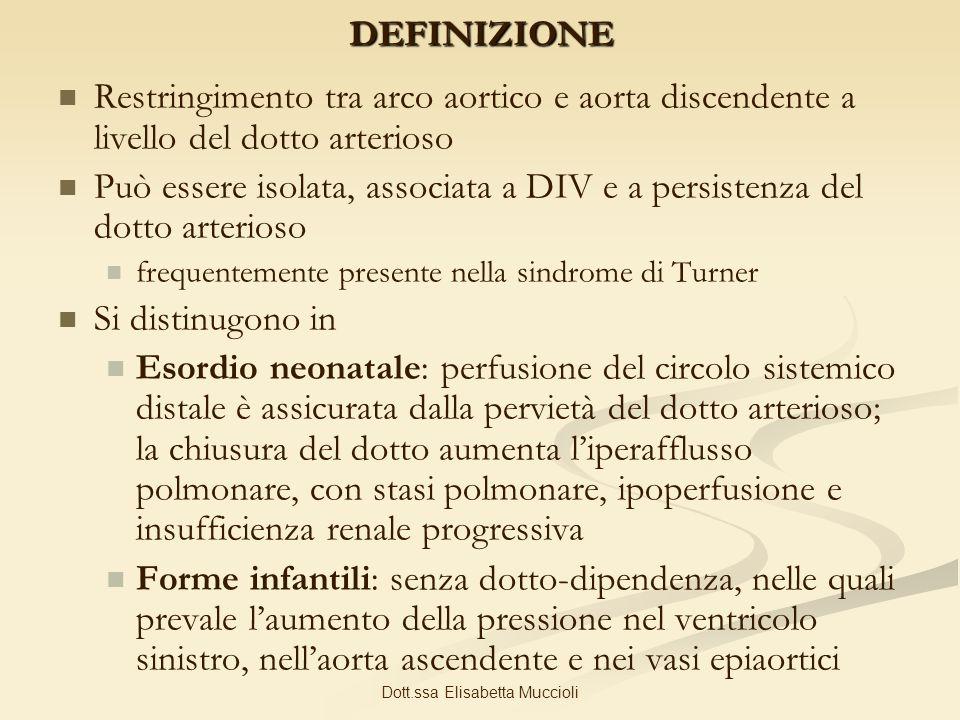 Dott.ssa Elisabetta MuccioliDEFINIZIONE Restringimento tra arco aortico e aorta discendente a livello del dotto arterioso Può essere isolata, associat