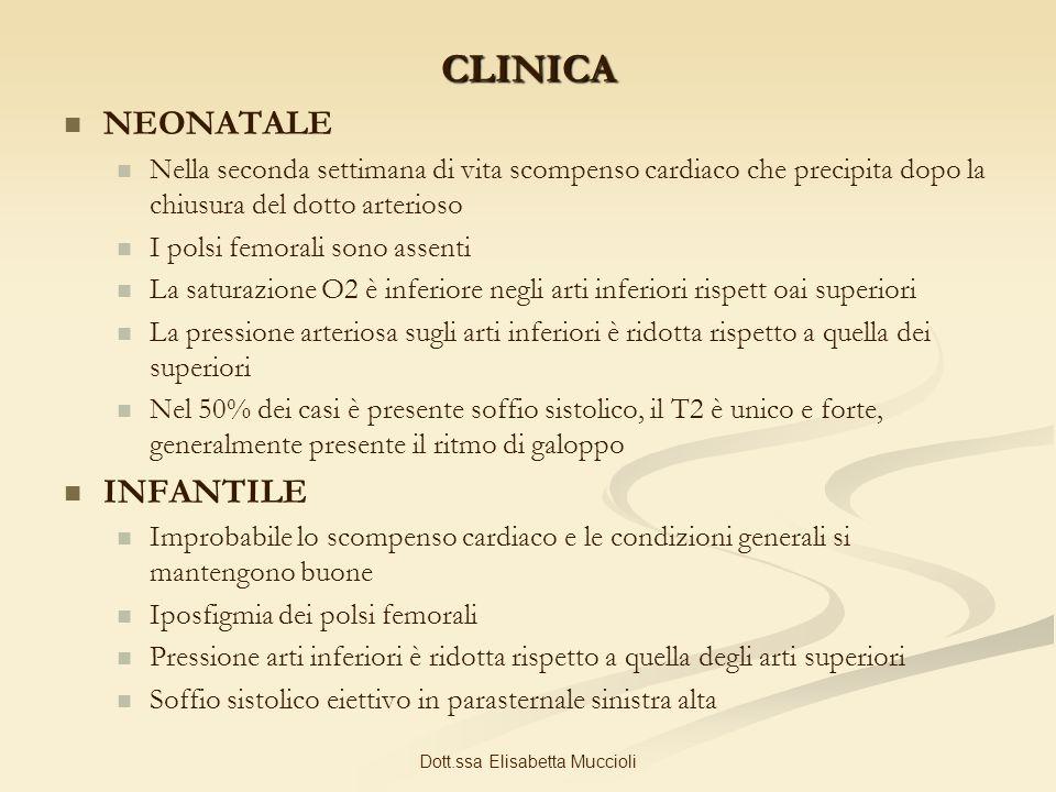 Dott.ssa Elisabetta Muccioli CLINICA NEONATALE Nella seconda settimana di vita scompenso cardiaco che precipita dopo la chiusura del dotto arterioso I