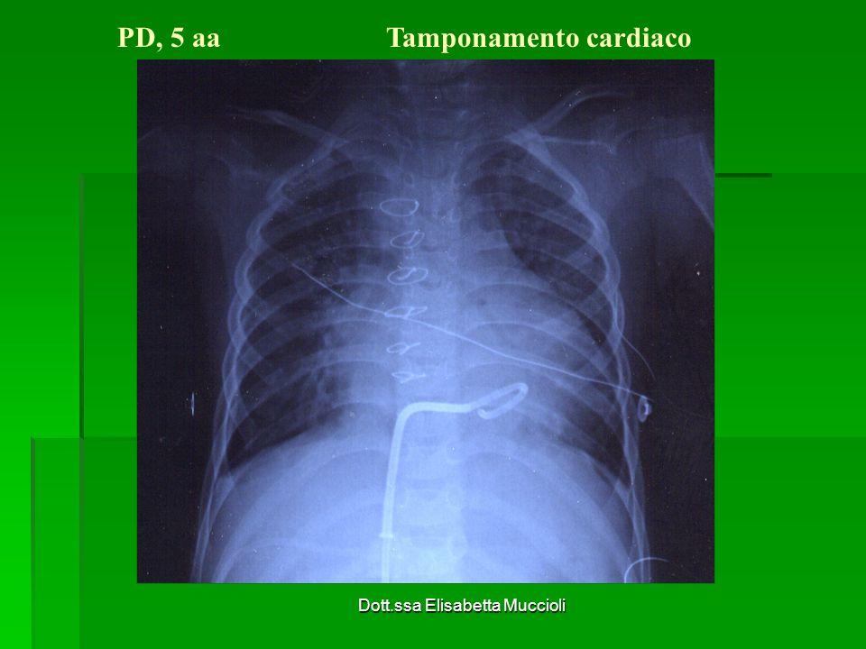 Dott.ssa Elisabetta Muccioli PD, 5 aa Tamponamento cardiaco