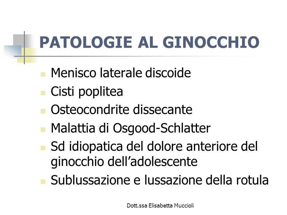 Dott.ssa Elisabetta Muccioli PATOLOGIE AL GINOCCHIO Menisco laterale discoide Cisti poplitea Osteocondrite dissecante Malattia di Osgood-Schlatter Sd