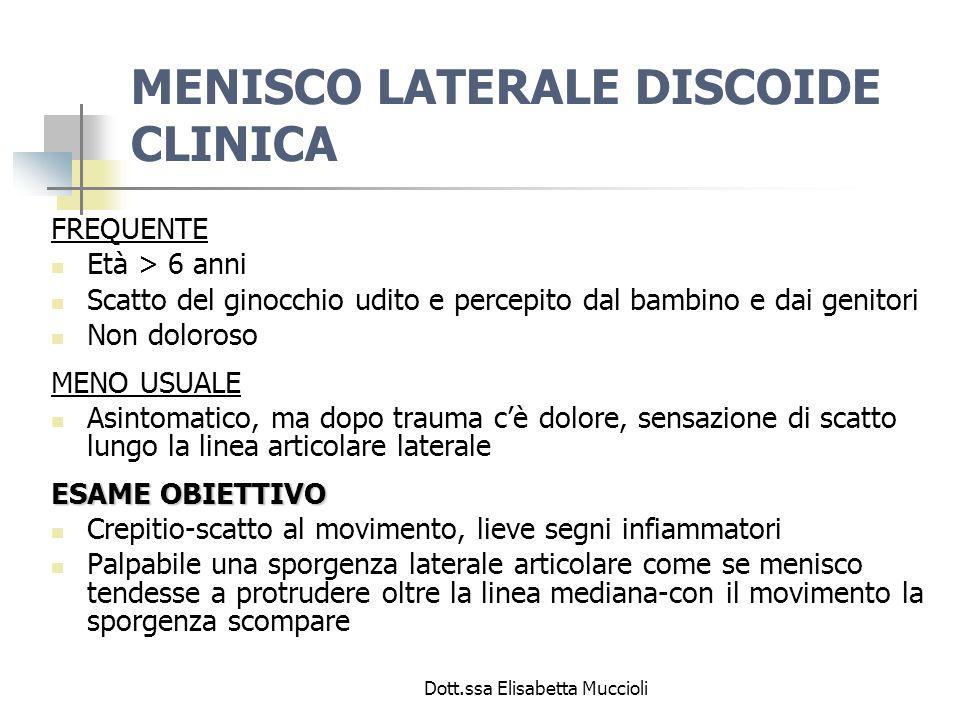 Dott.ssa Elisabetta Muccioli MENISCO LATERALE DISCOIDE CLINICA FREQUENTE Età > 6 anni Scatto del ginocchio udito e percepito dal bambino e dai genitor