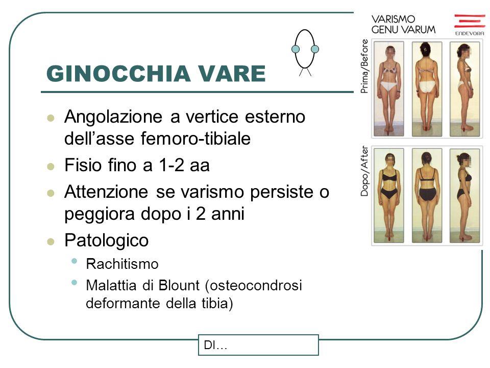 GINOCCHIA VARE Angolazione a vertice esterno dellasse femoro-tibiale Fisio fino a 1-2 aa Attenzione se varismo persiste o peggiora dopo i 2 anni Patol