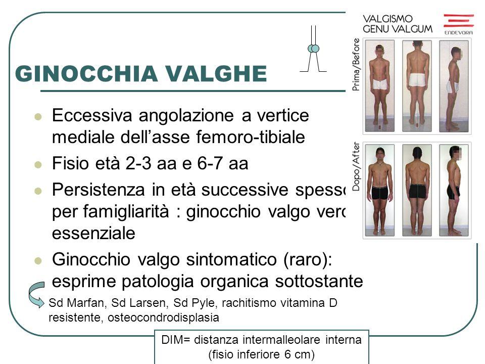 Dott.ssa Elisabetta Muccioli GINOCCHIA VALGHE Eccessiva angolazione a vertice mediale dellasse femoro-tibiale Fisio età 2-3 aa e 6-7 aa Persistenza in
