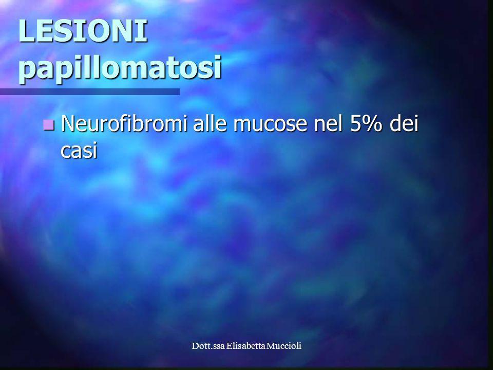 Dott.ssa Elisabetta Muccioli LESIONI papillomatosi Neurofibromi alle mucose nel 5% dei casi Neurofibromi alle mucose nel 5% dei casi
