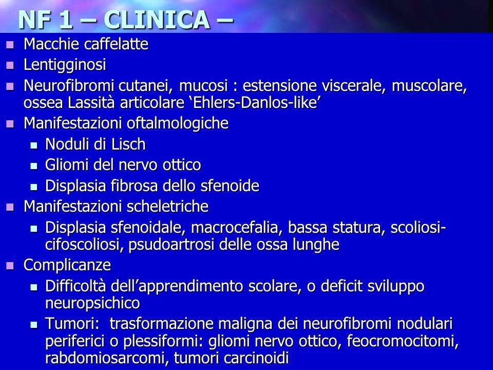 Dott.ssa Elisabetta Muccioli NF 1 – CLINICA – Macchie caffelatte Macchie caffelatte Lentigginosi Lentigginosi Neurofibromi cutanei, mucosi : estension