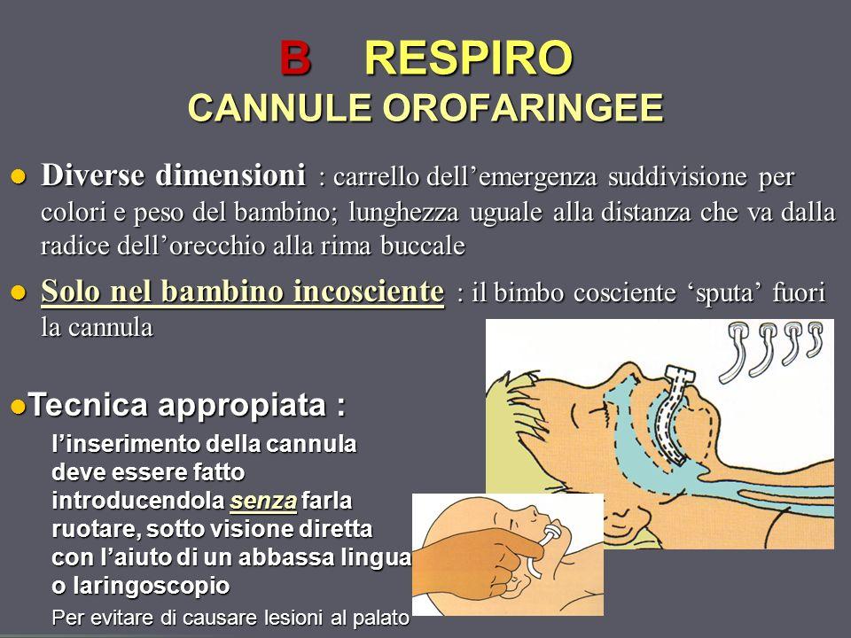 Dott.ssa Elisabetta Muccioli BRESPIRO CANNULE OROFARINGEE Diverse dimensioni : carrello dellemergenza suddivisione per colori e peso del bambino; lung