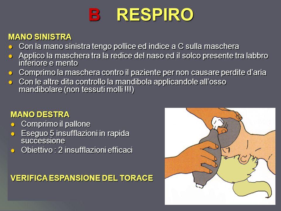 Dott.ssa Elisabetta Muccioli BRESPIRO MANO SINISTRA Con la mano sinistra tengo pollice ed indice a C sulla maschera Con la mano sinistra tengo pollice