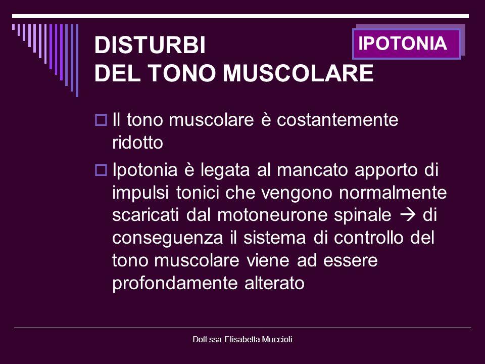 Dott.ssa Elisabetta Muccioli DISTURBI DEL TROFISMO MUSCOLARE Trofismo muscolare ridotto o deficitario Pato motoneurone o neuropatie Carenza delle influenze trofiche esercitate dallinnervazione motoria del muscolo Miopatie Fenomeni degenerativi intrinseci al processo morboso IPOTROFIA - ATROFIA