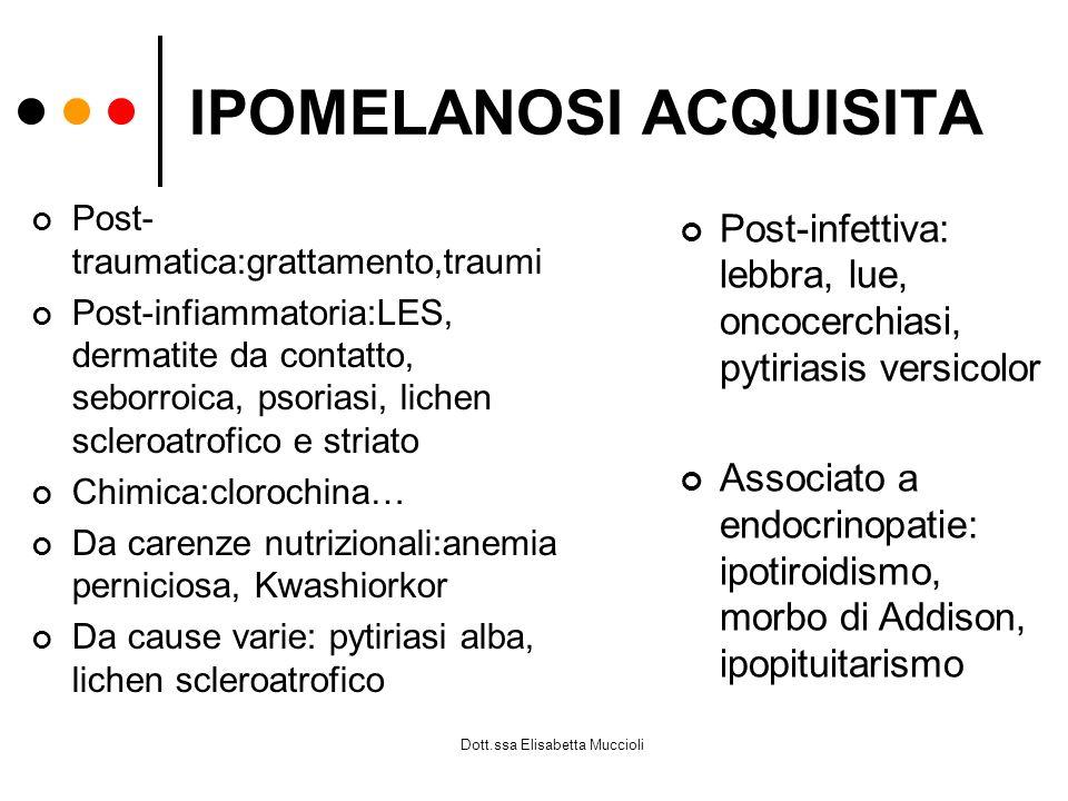 Dott.ssa Elisabetta Muccioli IPOMELANOSI ACQUISITA Post- traumatica:grattamento,traumi Post-infiammatoria:LES, dermatite da contatto, seborroica, psor