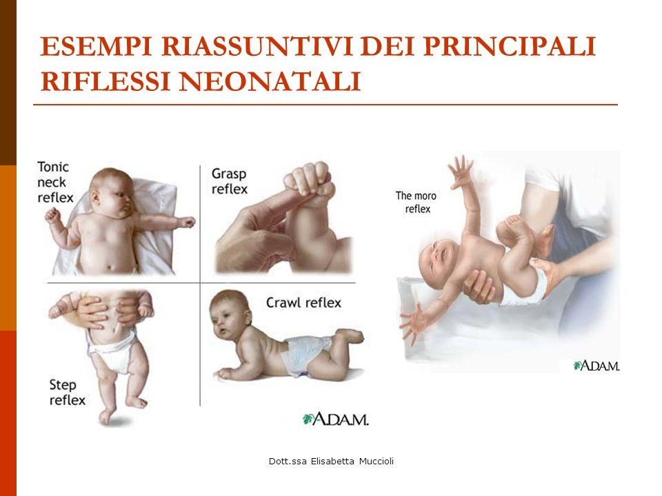 Dott.ssa Elisabetta Muccioli ESEMPI RIASSUNTIVI DEI PRINCIPALI RIFLESSI NEONATALI