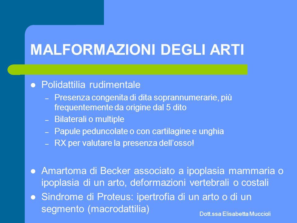 Dott.ssa Elisabetta Muccioli MALFORMAZIONI DEGLI ARTI Polidattilia rudimentale – Presenza congenita di dita soprannumerarie, più frequentemente da ori