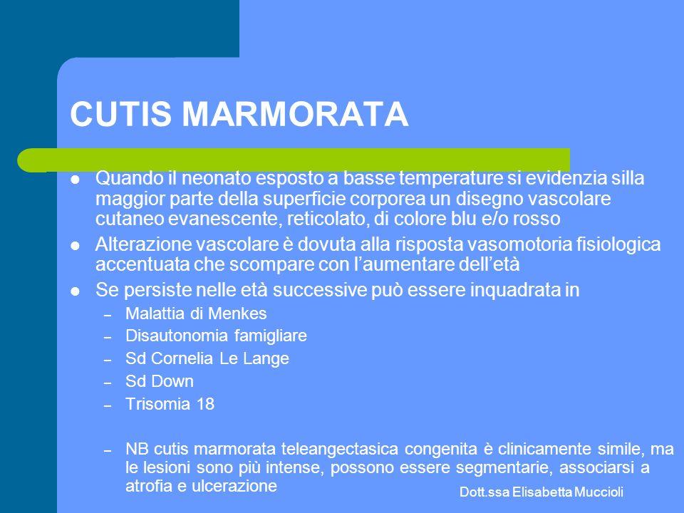 Dott.ssa Elisabetta Muccioli CUTIS MARMORATA Quando il neonato esposto a basse temperature si evidenzia silla maggior parte della superficie corporea