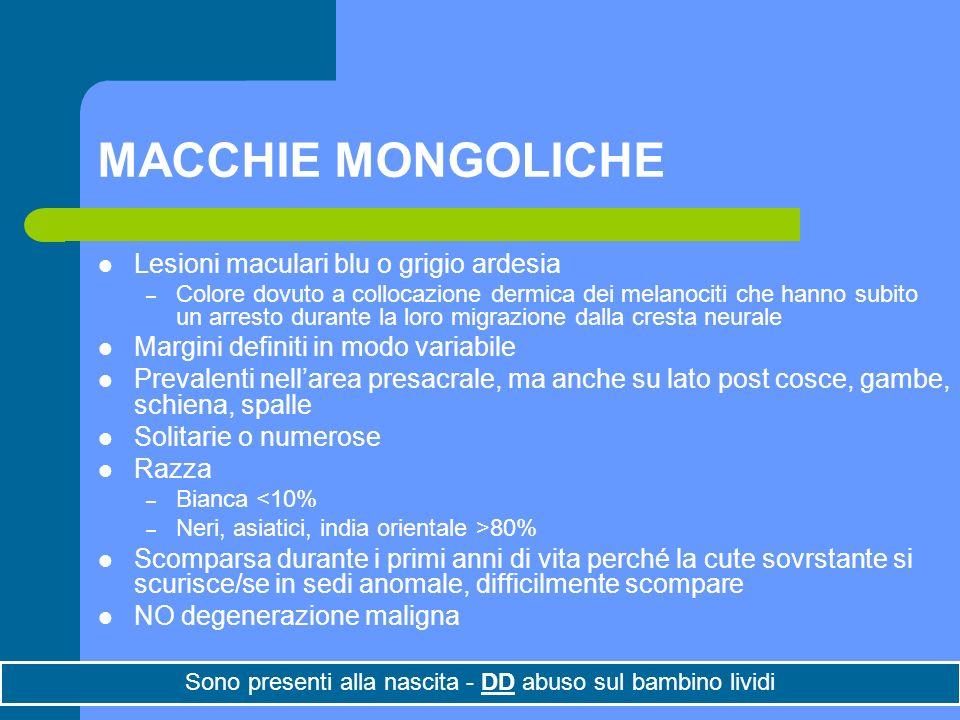 Dott.ssa Elisabetta Muccioli MACCHIE MONGOLICHE Lesioni maculari blu o grigio ardesia – Colore dovuto a collocazione dermica dei melanociti che hanno