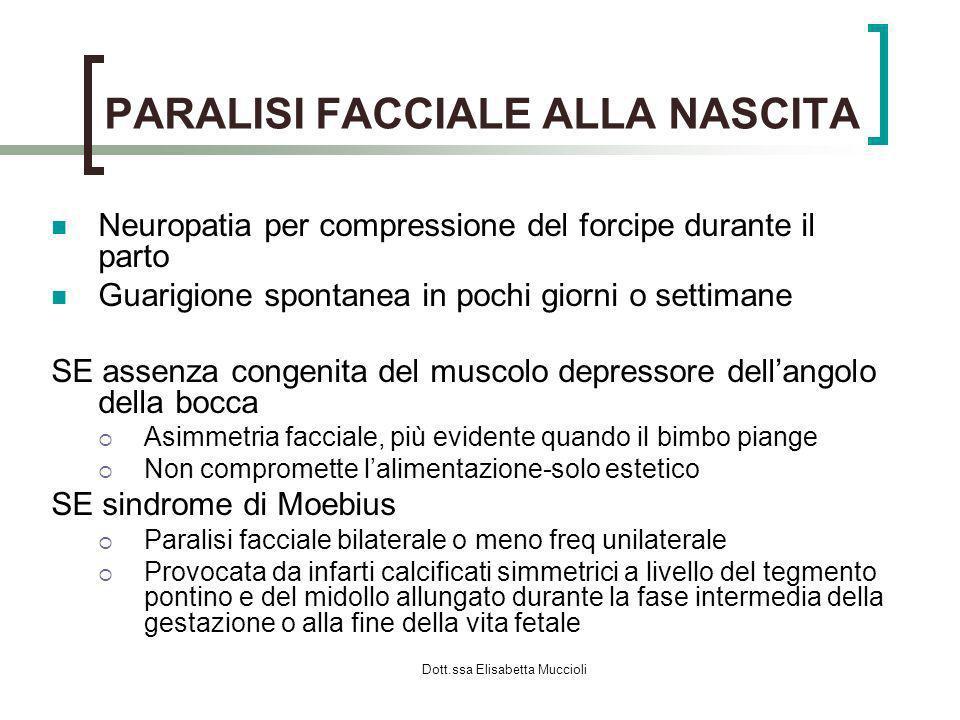 Dott.ssa Elisabetta Muccioli PARALISI FACCIALE ALLA NASCITA Neuropatia per compressione del forcipe durante il parto Guarigione spontanea in pochi gio
