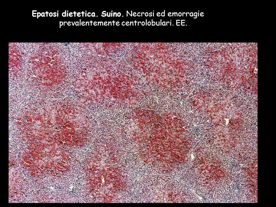 Epatosi dietetica. Suino. Necrosi ed emorragie prevalentemente centrolobulari. EE.