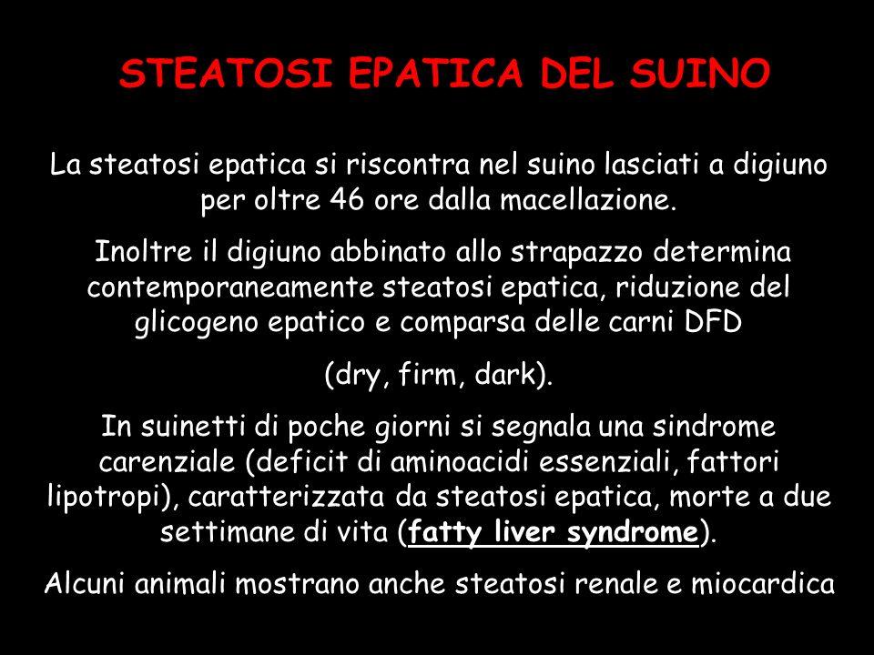 STEATOSI EPATICA DEL SUINO La steatosi epatica si riscontra nel suino lasciati a digiuno per oltre 46 ore dalla macellazione. Inoltre il digiuno abbin