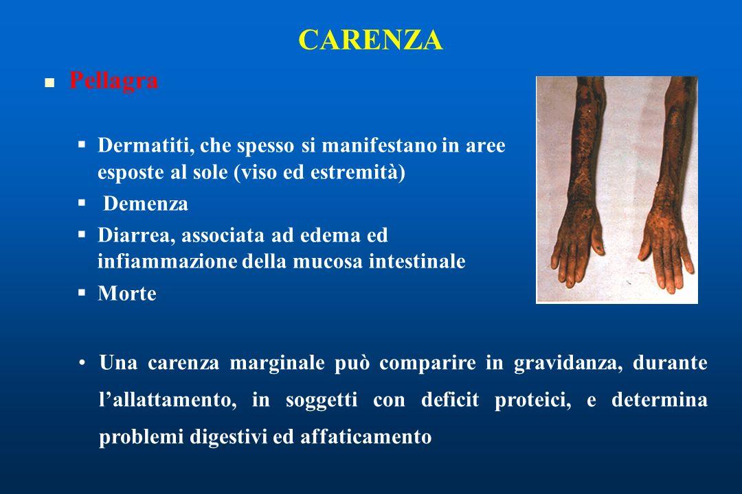 CARENZA Pellagra Dermatiti, che spesso si manifestano in aree esposte al sole (viso ed estremità) Demenza Diarrea, associata ad edema ed infiammazione