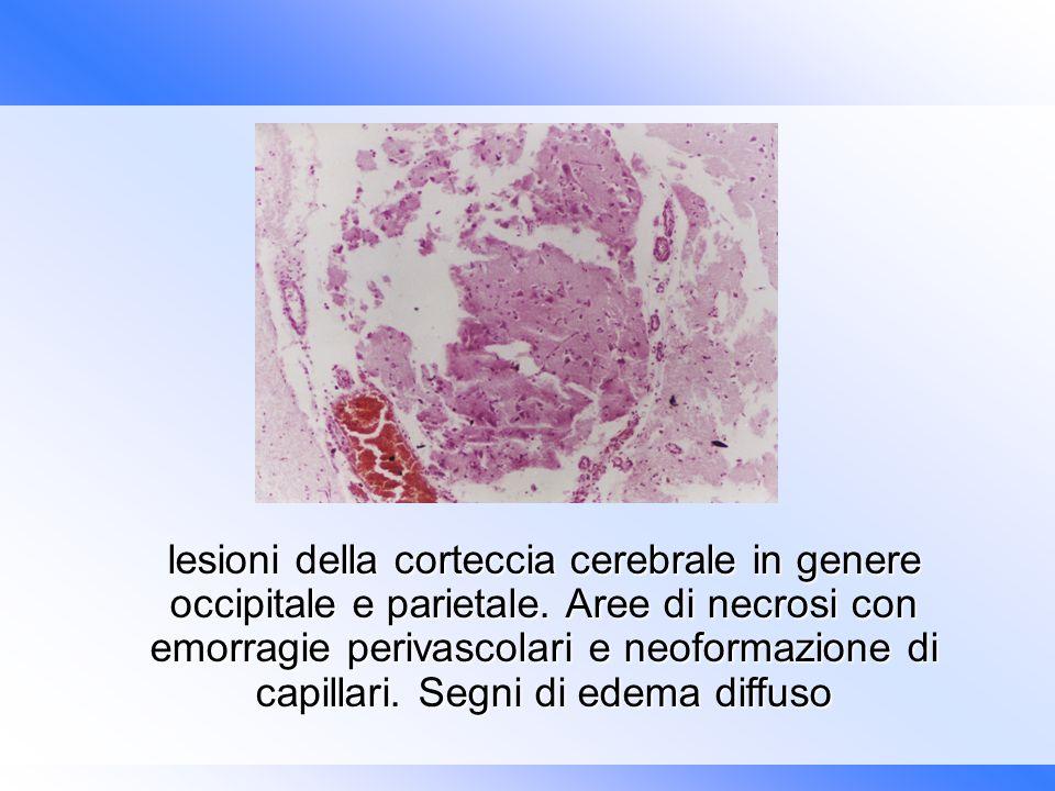 lesioni della corteccia cerebrale in genere occipitale e parietale. Aree di necrosi con emorragie perivascolari e neoformazione di capillari. Segni di