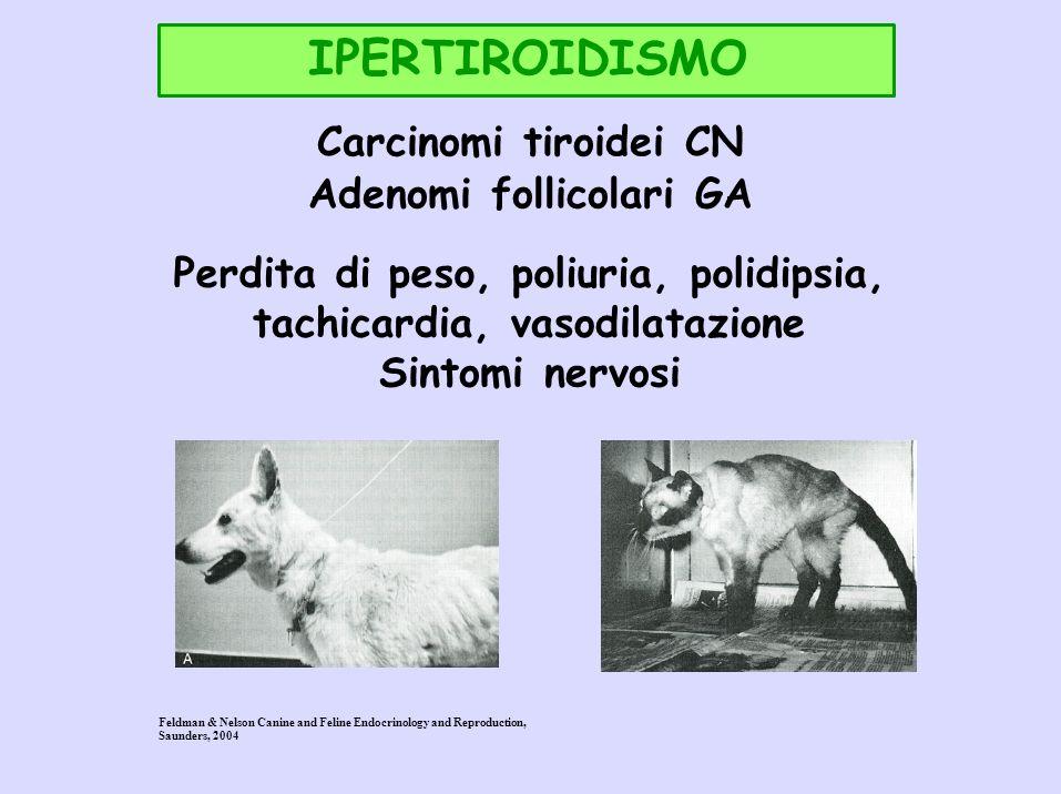IPERTIROIDISMO Carcinomi tiroidei CN Adenomi follicolari GA Perdita di peso, poliuria, polidipsia, tachicardia, vasodilatazione Sintomi nervosi Feldma