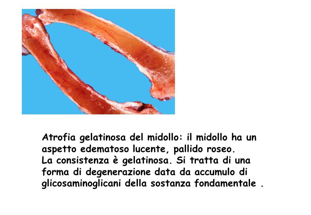 Atrofia gelatinosa del midollo: il midollo ha un aspetto edematoso lucente, pallido roseo. La consistenza è gelatinosa. Si tratta di una forma di dege
