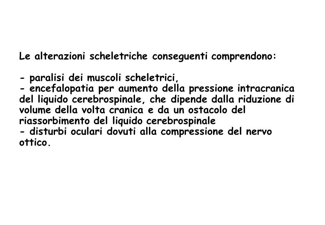 Le alterazioni scheletriche conseguenti comprendono: - paralisi dei muscoli scheletrici, - encefalopatia per aumento della pressione intracranica del