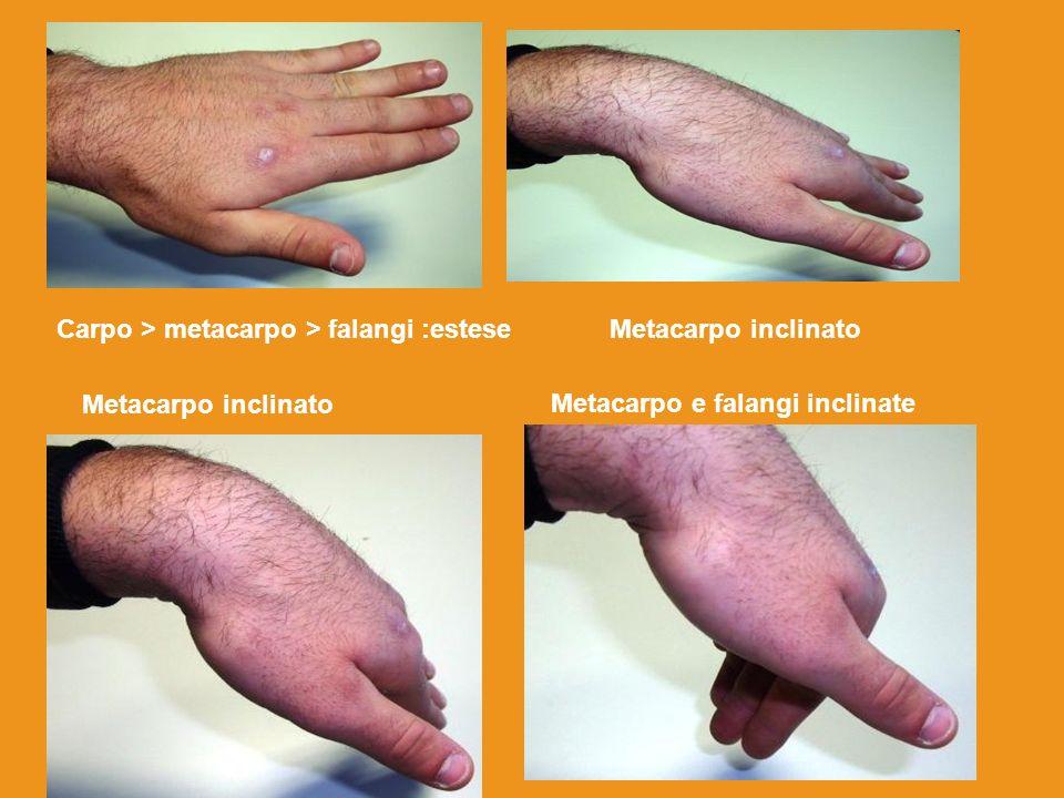 Carpo > metacarpo > falangi :esteseMetacarpo inclinato Metacarpo e falangi inclinate