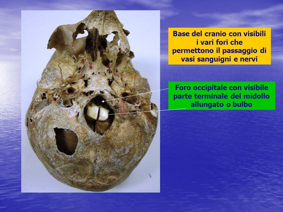 Base del cranio con visibili i vari fori che permettono il passaggio di vasi sanguigni e nervi Foro occipitale con visibile parte terminale del midoll