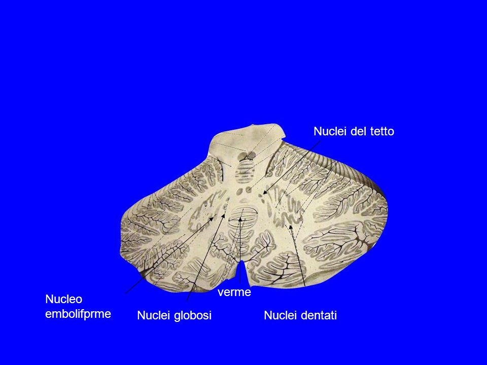 Nuclei globosiNuclei dentati Nucleo embolifprme Nuclei del tetto verme