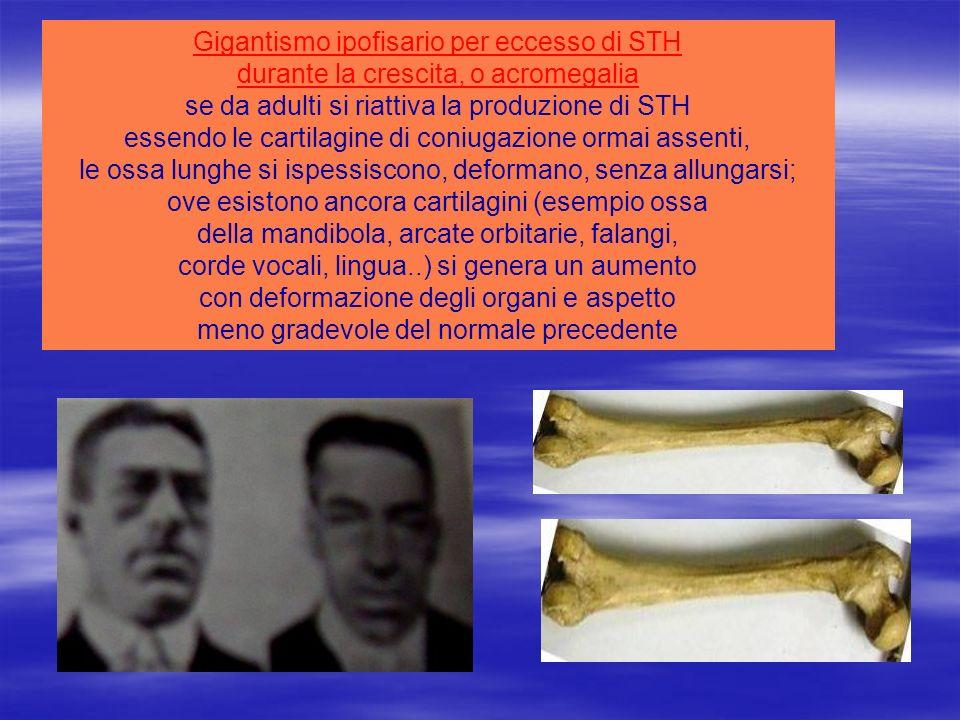 Gigantismo ipofisario per eccesso di STH durante la crescita, o acromegalia se da adulti si riattiva la produzione di STH essendo le cartilagine di co