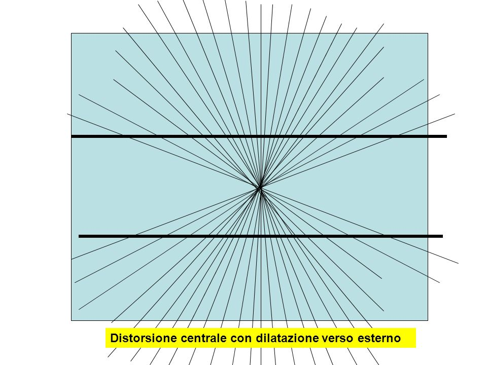 Distorsione centrale con dilatazione verso esterno