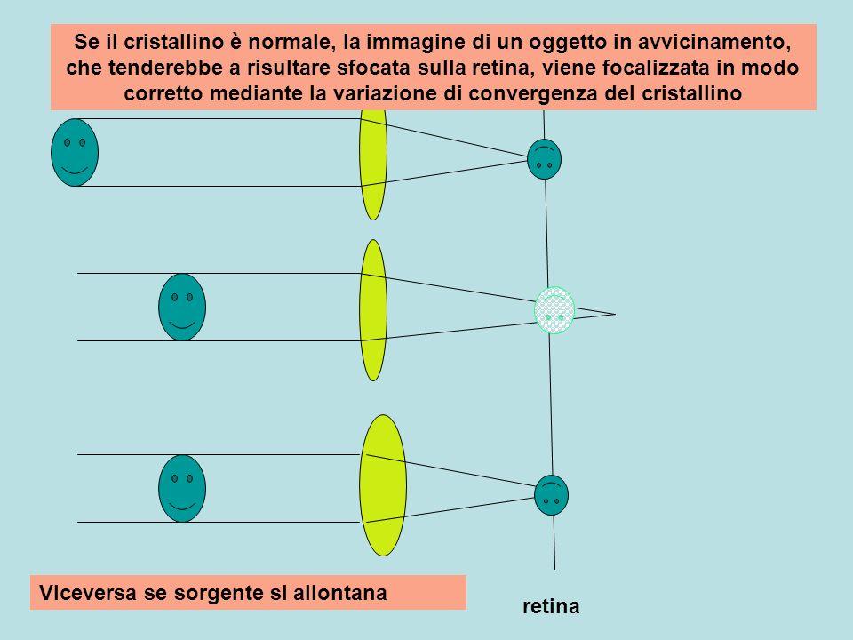 Se il cristallino è normale, la immagine di un oggetto in avvicinamento, che tenderebbe a risultare sfocata sulla retina, viene focalizzata in modo co