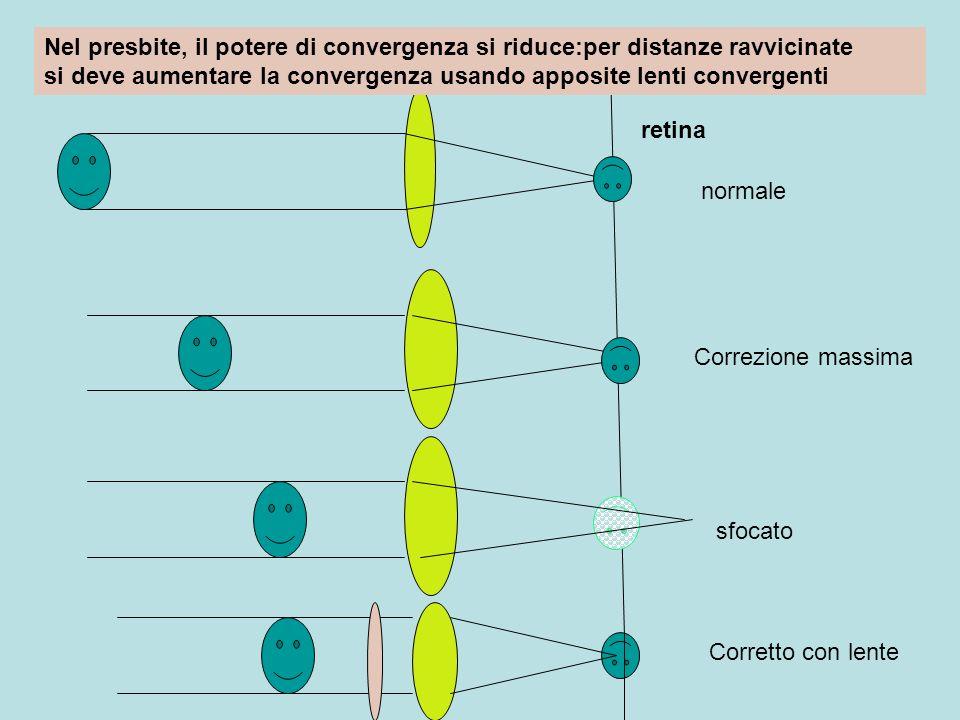 retina normale Correzione massima sfocato Corretto con lente Nel presbite, il potere di convergenza si riduce:per distanze ravvicinate si deve aumenta