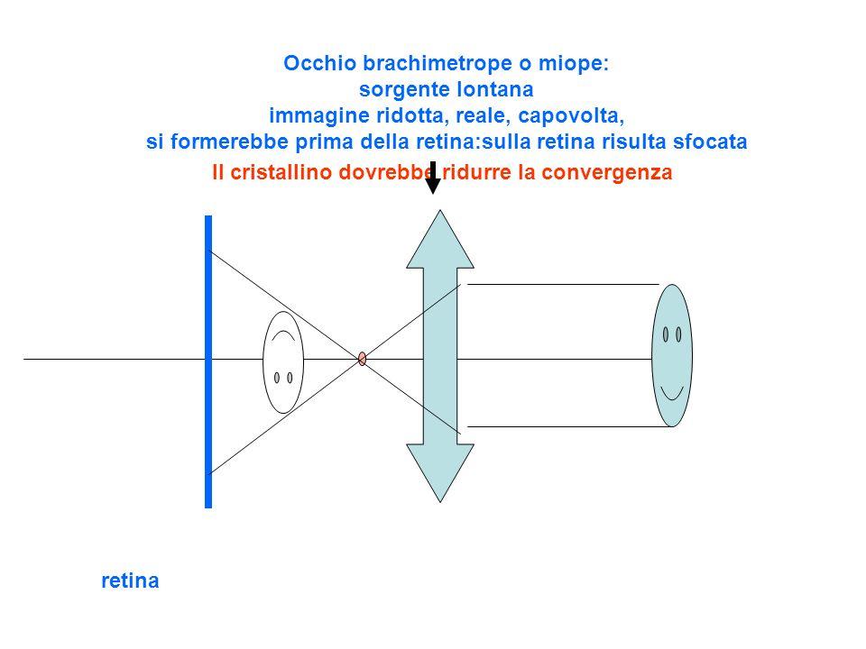 retina Occhio brachimetrope o miope: sorgente lontana immagine ridotta, reale, capovolta, si formerebbe prima della retina:sulla retina risulta sfocata Il cristallino dovrebbe ridurre la convergenza