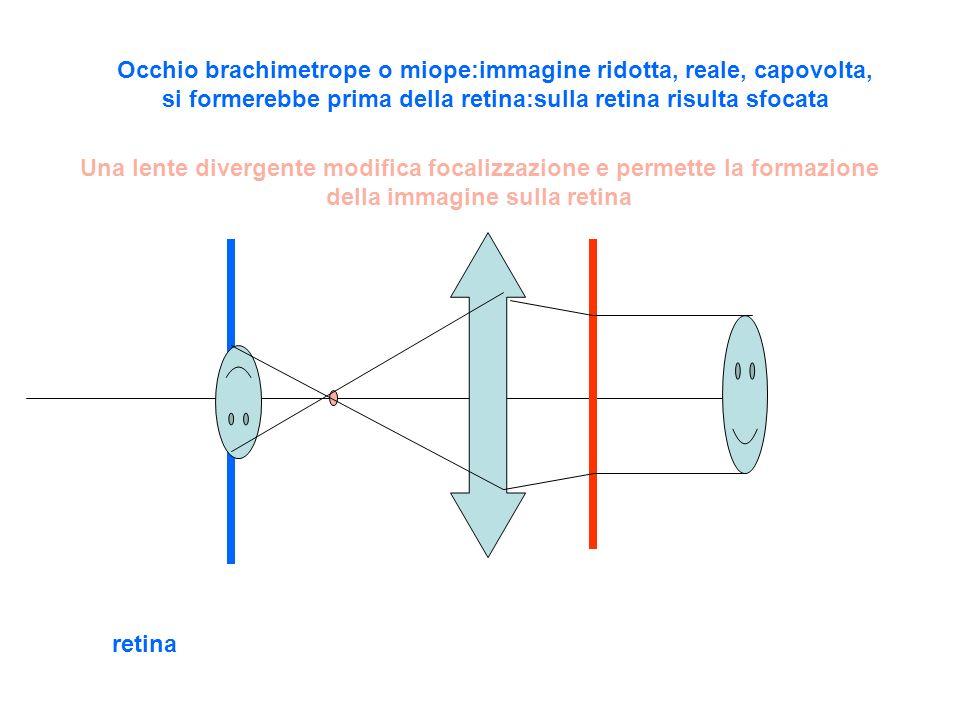 retina Occhio brachimetrope o miope:immagine ridotta, reale, capovolta, si formerebbe prima della retina:sulla retina risulta sfocata Una lente divergente modifica focalizzazione e permette la formazione della immagine sulla retina