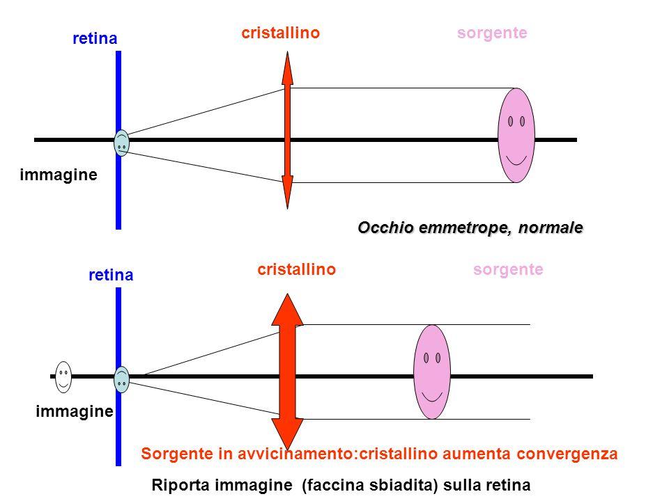 retina cristallinosorgente immagine retina cristallinosorgente immagine Sorgente in avvicinamento:cristallino aumenta convergenza Riporta immagine (faccina sbiadita) sulla retina Occhio emmetrope, normale