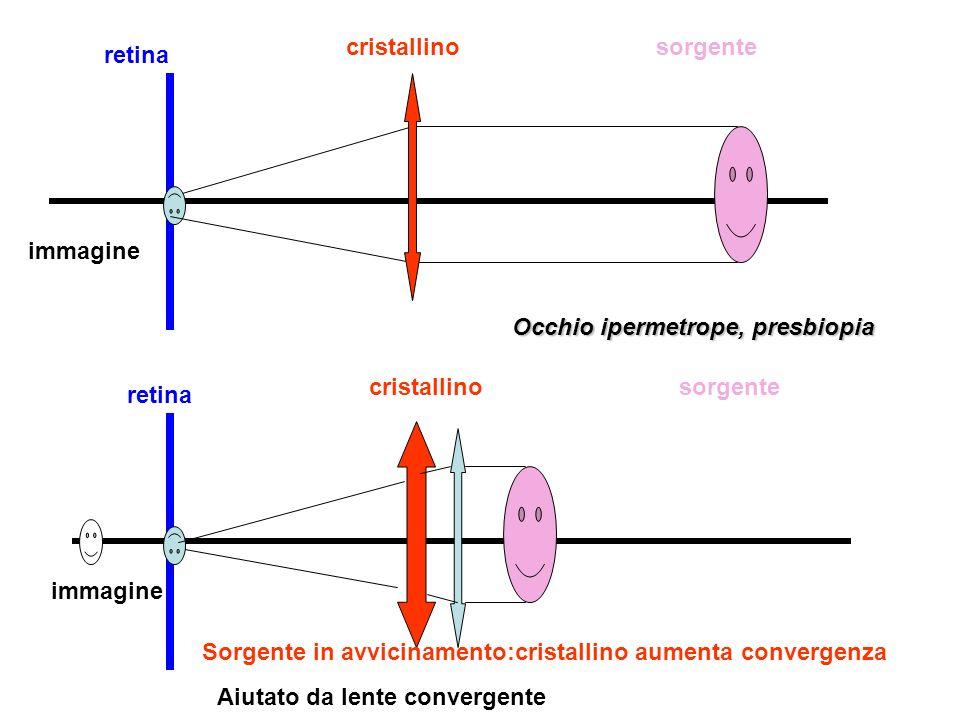 retina cristallinosorgente immagine retina cristallinosorgente immagine Sorgente in allontanamento:cristallino diminuisce convergenza Aiutato da lente divergente Occhio brachimetrope, miopia