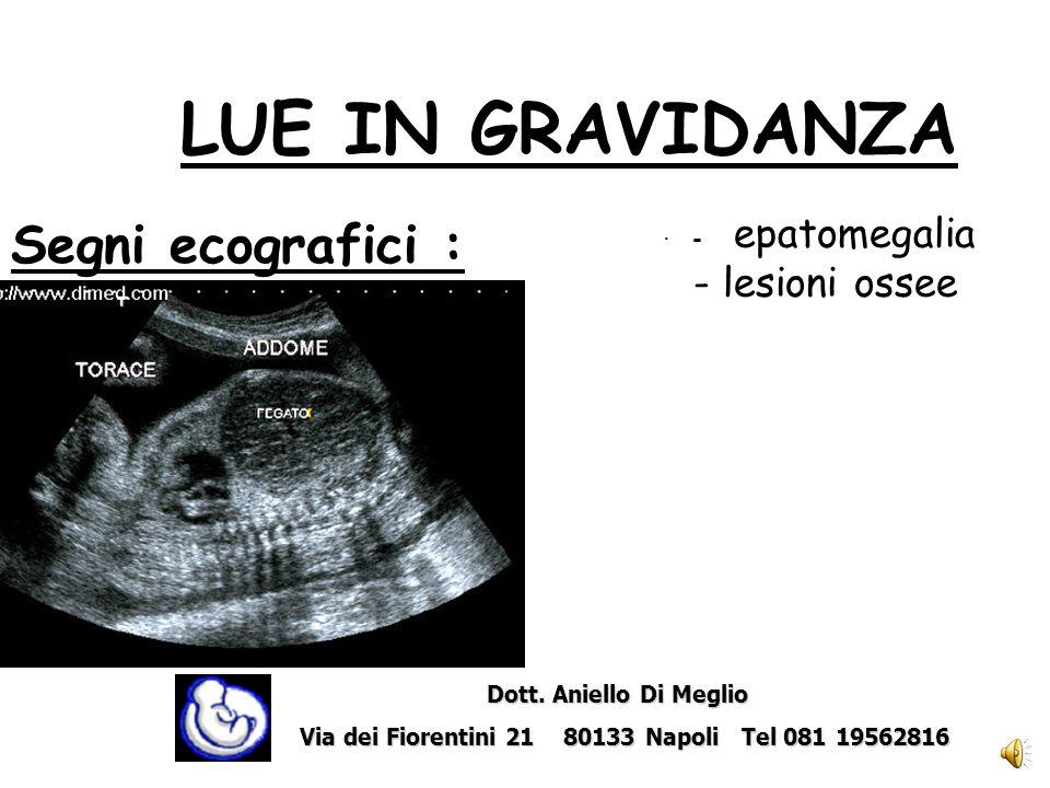 Segni ecografici : · idrope fetale · LUE IN GRAVIDANZA Dott. Aniello Di Meglio Dott. Aniello Di Meglio Via dei Fiorentini 21 80133 Napoli Tel 081 1956
