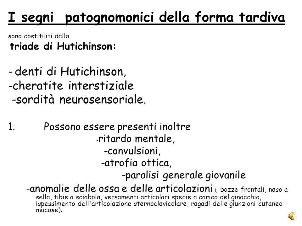 I sintomi più caratteristici della sifilide congenita precoce sono: -epatomegalia, con o senza splenomegalia, -rash cutaneo -anomalie ossee; -ittero e