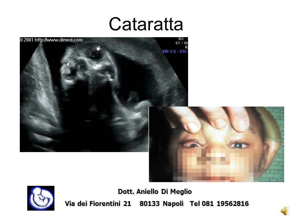 Difetto del setto cardiaco Dott. Aniello Di Meglio Dott. Aniello Di Meglio Via dei Fiorentini 21 80133 Napoli Tel 081 19562816
