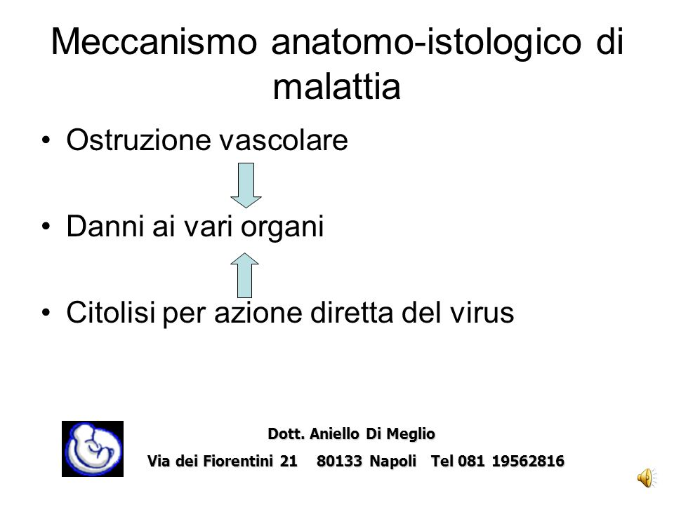 Cataratta Dott.Aniello Di Meglio Dott.