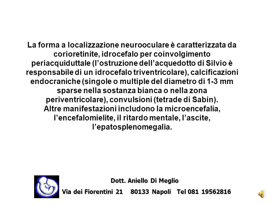 Microcefalia Dott. Aniello Di Meglio Dott. Aniello Di Meglio Via dei Fiorentini 21 80133 Napoli Tel 081 19562816