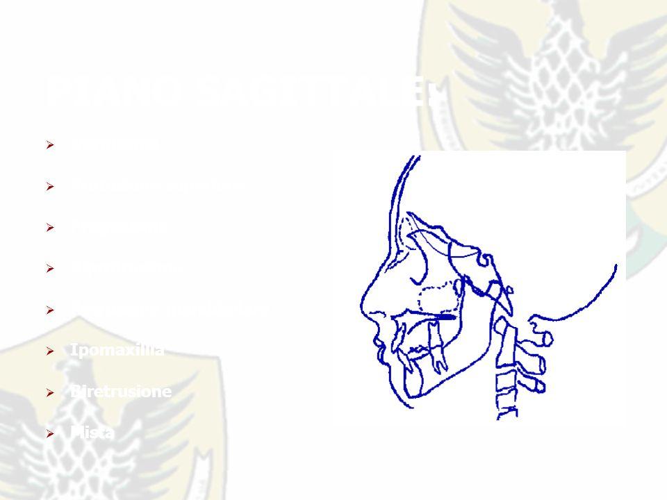 PIANO SAGITTALE: Normotipo Protusione superiore Progenismo Biprotrusione Retrusione mandibolare Ipomaxillia Biretrusione Mista